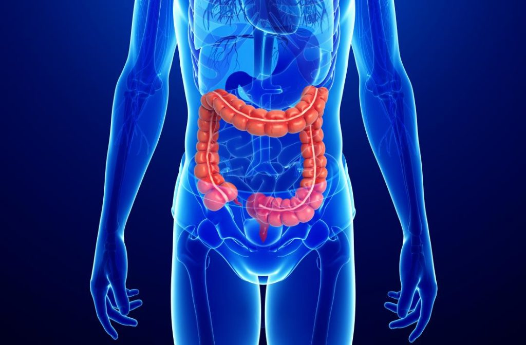 Everything You Need to Know About Ulcerative Colitis